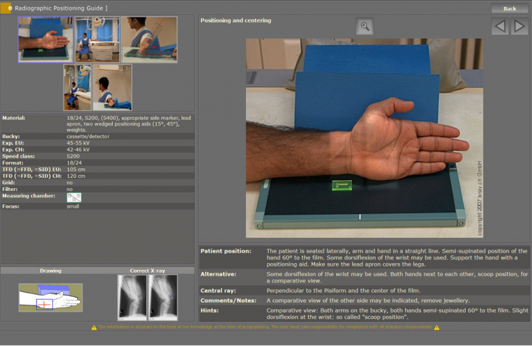 Integrated radiographic positioning guide for each examination incl. comprehensive notes, photos, videos and correct X-ray images