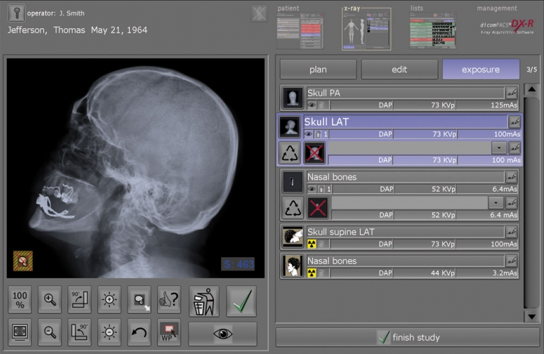 Work list - X-ray image acquisition and diagnostic software