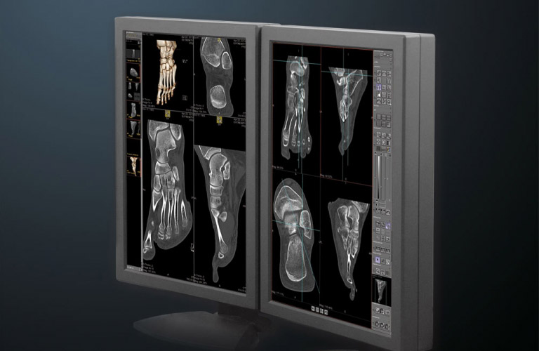 icomPACS includes all the necessary tools for the professional diagnosis of slices such as CT or MRI