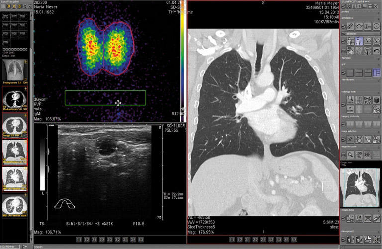 PACS software: Special adaptation for radiologists - Easy integration into an existing HIS or RIS (DICOM, HL7, BDT/GDT)
