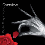 /media/downloads/Brochure digital X-ray imaging overview_human_EN.pdf.png